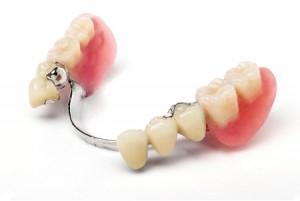 Протезирование зубов в Белорецке АВА-ДЕНТ