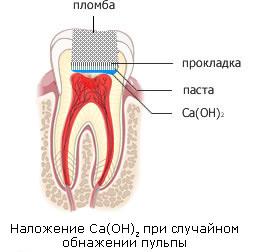 Лечение пульпита АВА-ДЕНТ Белорецк