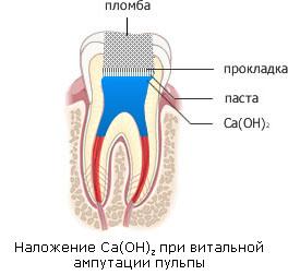 Лечение пульпита АВА-ДЕНТ Белорецк Стоматология